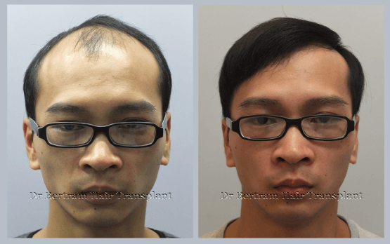 Dr Bertram Hair Transplant Hong Kong